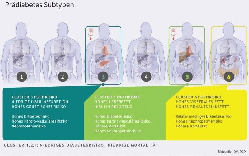 Gafik: sechs Subtypen des Prädiabetes als Menschen mit zunehmenden Übergewicht