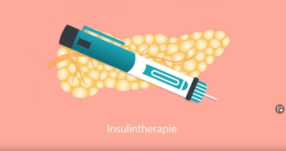 Grafik: medimotion: Wann brauche ich Insulin.